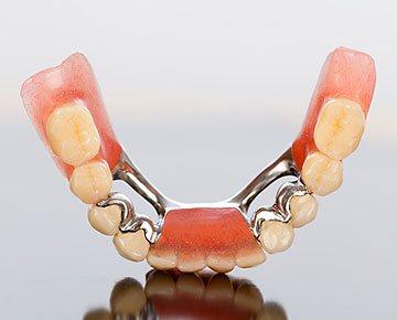 Стачивание зубов для виниров